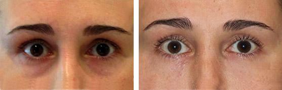 non surgical blepharoplasty eye lift