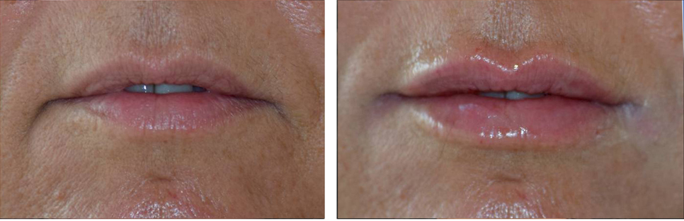 non surgical lip augmentation