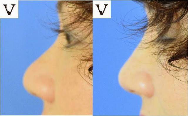 bulbous tip nose correction