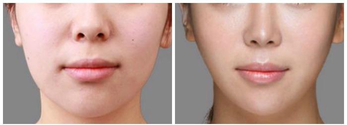 Botox face slimming