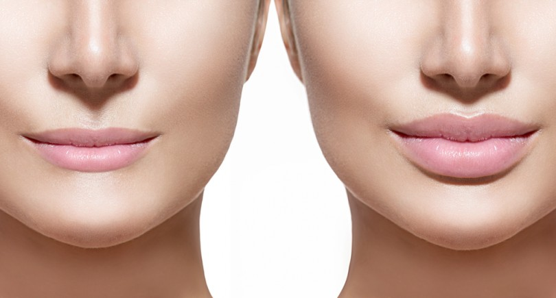 Lip fillers boston