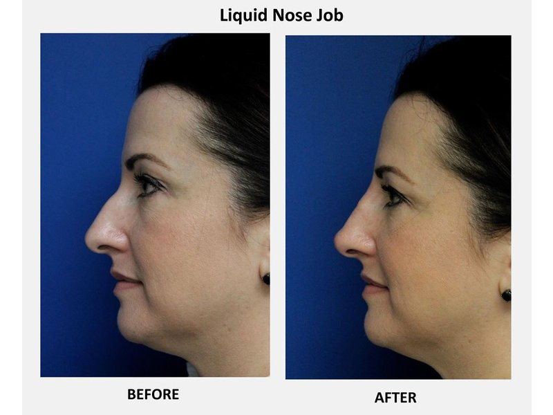 Liquid nose job
