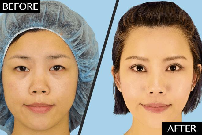 Asian nose job