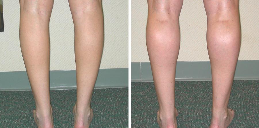 Botox calf reduction