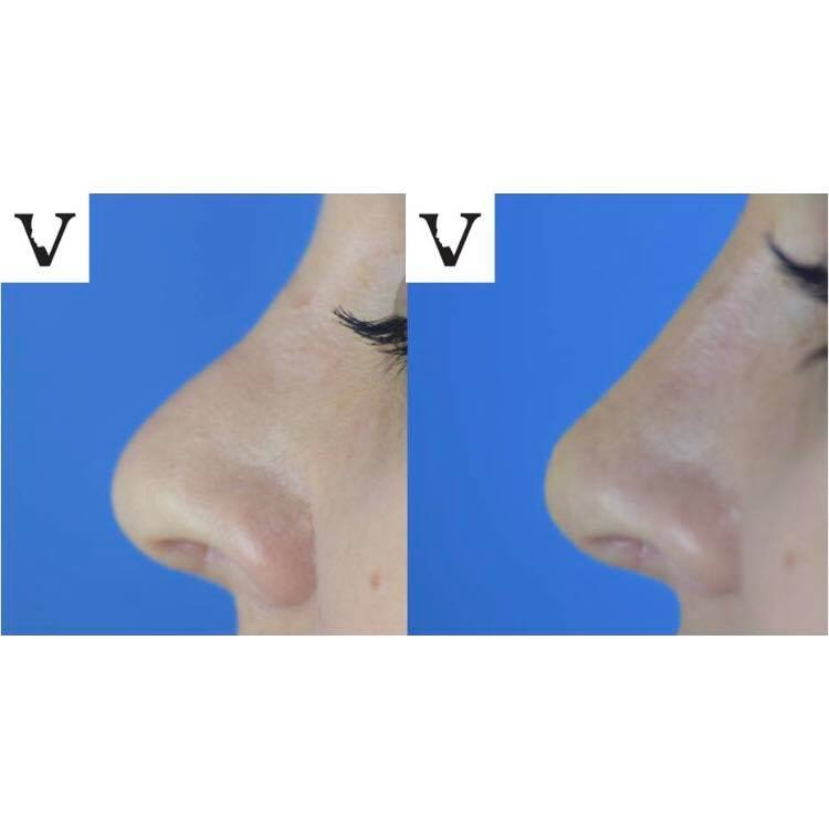 5 minute nose job