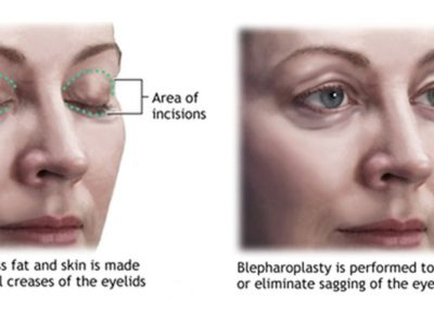 Non surgical blepharoplasty newton ma
