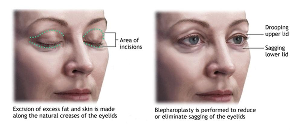 Non surgical blepharoplasty newton ma