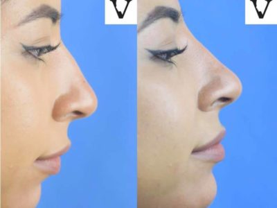 rhinoplasty boston