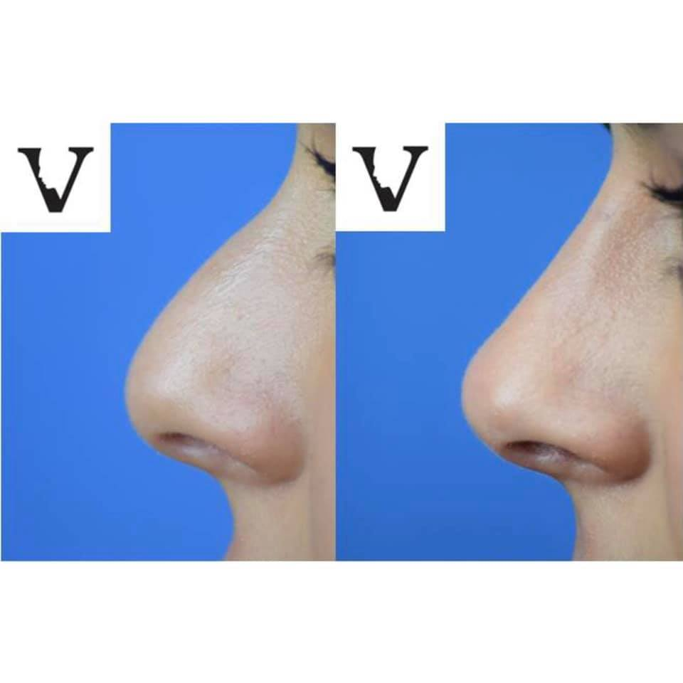 nose job without surgery